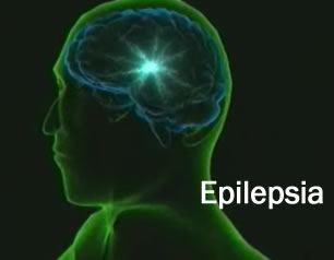 epilepsia4