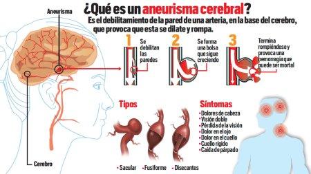 Por que se produce la aneurisma cerebral