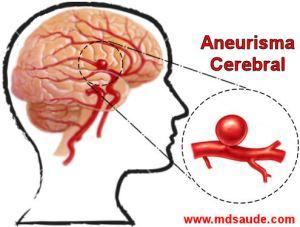 Aneurisma-cerebral1