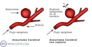 Aneurisma-cerebral2