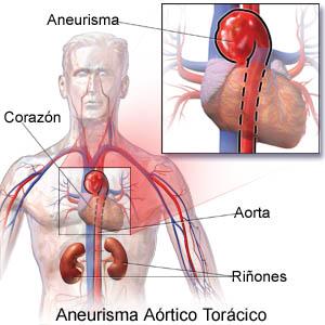 aneurisma2