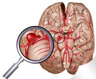 aneurisma_cerebral