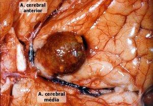 aneurisma_cerebral2