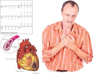 angina3