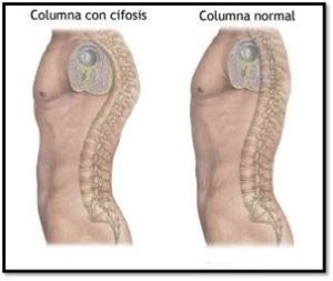 Cifosis 1