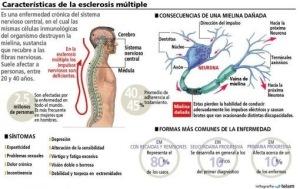 Esclerosis1