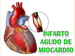 Infaro de miocardio 2