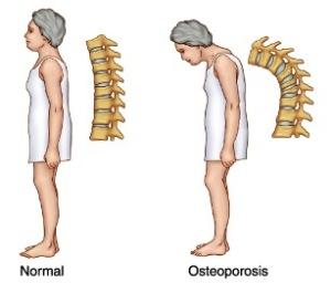 osteoporosis3