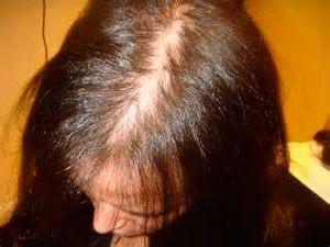 Como luchar con la caída de los cabello para los hombres