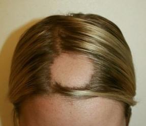 El aceite de ricino con la vitamina y en para los cabellos