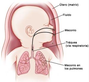 meconio2