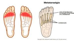 Metatar2