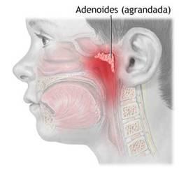 adenoides2