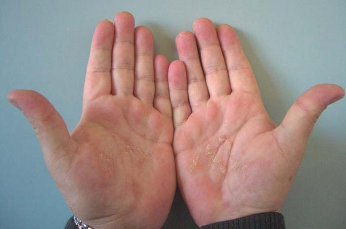 La psoriasis sobre las palmas de las manos el tratamiento el foro