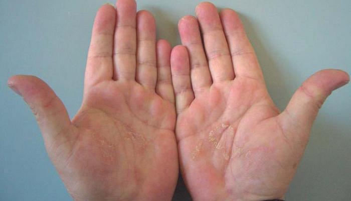 me pican mucho las manos y los pies