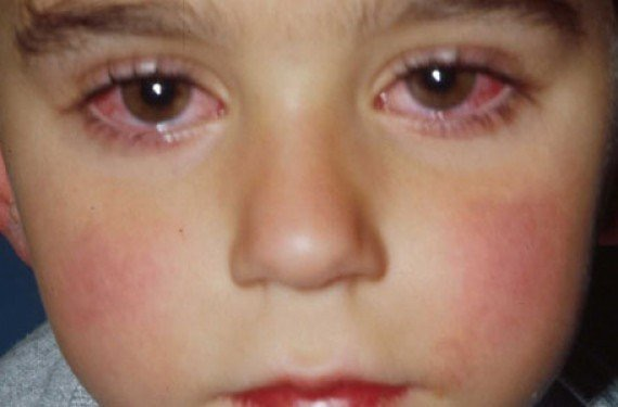 conjuntivitis1