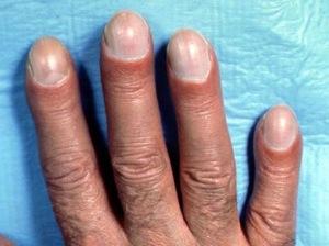 dedos palillo1