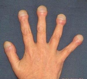 dedos palillo2