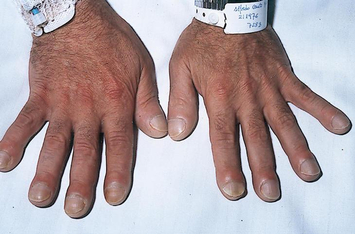 Dedos En Palillo De Tambor Centro Cl 237 Nico Y Dental
