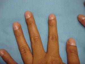 dedos palillo5