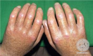 esclerodermia1