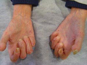 esclerodermia2