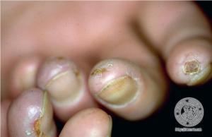 esclerodermia3