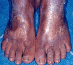 esclerodermia4