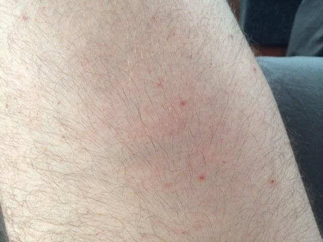 piel con pequeños puntos rojos