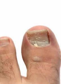 Los síntomas del hongo de las uñas y los pies