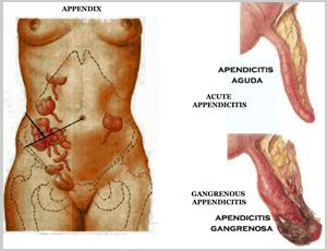 apendicitis3