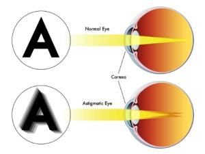 astigmatismo1