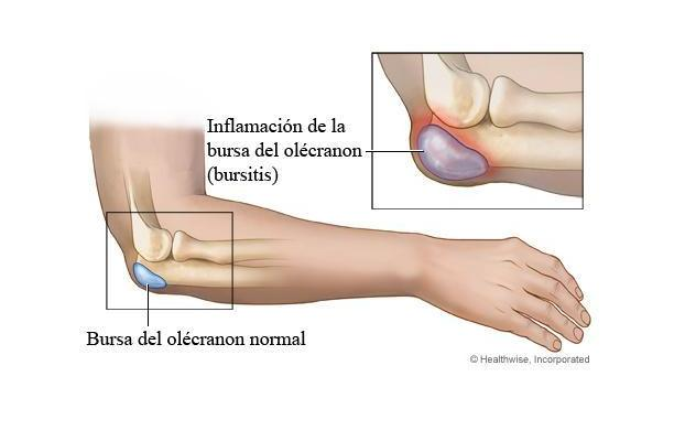 Post-traumatica tratamentul popular al artritei