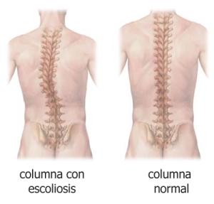 escoliosis1