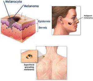melanoma2