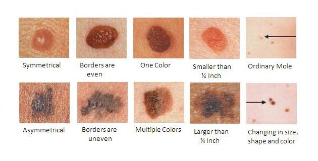 melanoma4