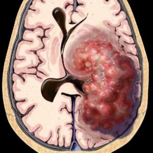 tumor3