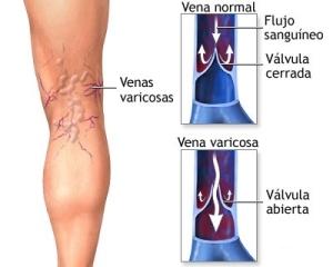 varices1